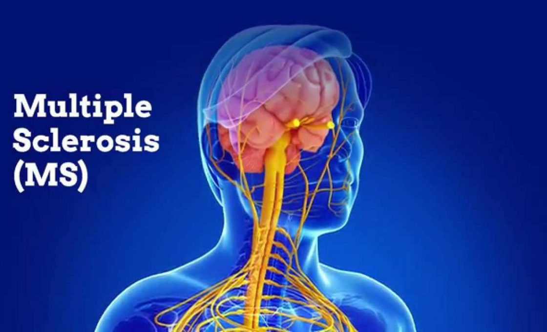World MS Day –  Multiple Sclerosis Natural Treatment