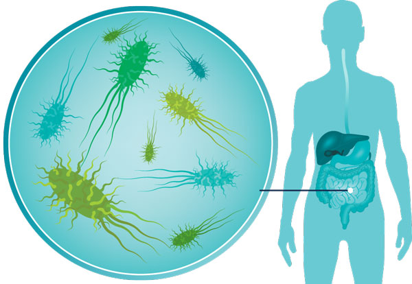 Your body bugs may be causing your ill health