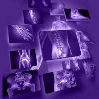 Hifas da Terra: Chronic Inflammation: An innovative approach to Mycotherapy